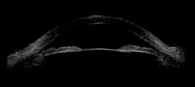 Viziunea kardasheva oksana - Ochi oftalmologie biomedis-m